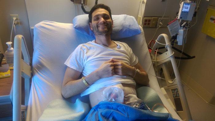 first surgery remove colon