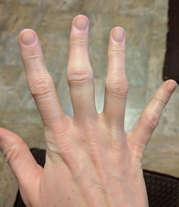 arthritis right middle finger
