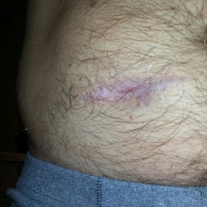 That's a close up of the scar left behind.  I really didn't want to show my nasty hairy ass stomach, but I wanted to show the progression.  Apparently hair WILL grow back.