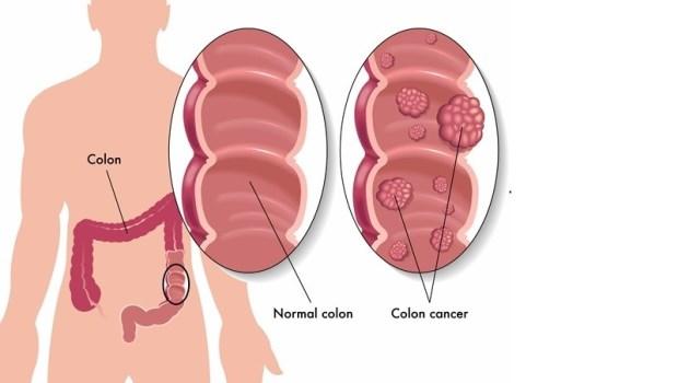 大腸癌、直腸癌一定要化療嗎?馬偕醫師解析:關於治療你想知道的那些事