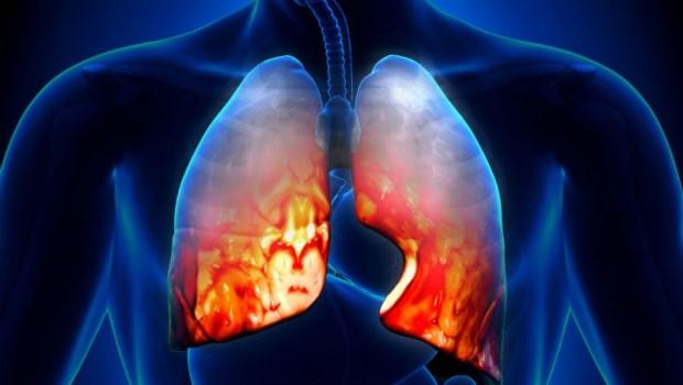 感染肺炎,半天就病危!胸腔重症醫師:關於肺炎,你一定要知道的4件事