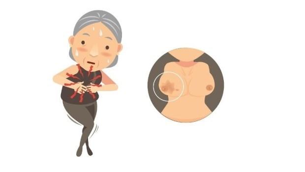 戰勝乳癌後,要如何避免復發?乳房外科醫師教你:2招自我防護