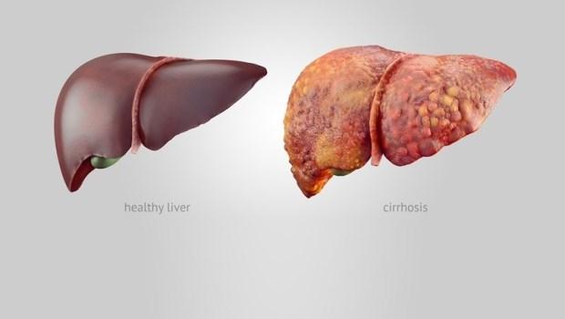 脂肪肝不注意就可能變成肝硬化!前東京帝醫醫院院長教你:多吃兩種食物預防
