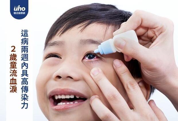2歲童流血淚 這病兩週內具高傳染力
