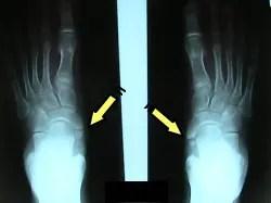 有痛性外脛骨1
