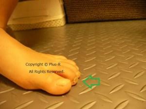 子どもの足趾変形(マレットフィンガー)ビフォーアフター。