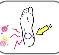 埼玉県さいたま市Plus-R足底筋膜炎