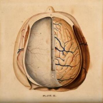 view Brain: dissection showing the top of the brain, with the dura mater of the left hemisphere and the gyri of the right. Watercolour after(?) W.H. Lizars, ca. 1826.