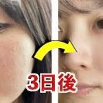 ニキビ,マスク荒れ,花粉荒れを3日で治した方法!男性にもオススメ【肌荒れ スキンケア】