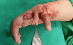 Figure 19: Adjusting skin flaps to get new thumb in opposition and pronation