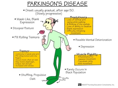 Shaky hands may or may not be a sign of Parkinson's ...
