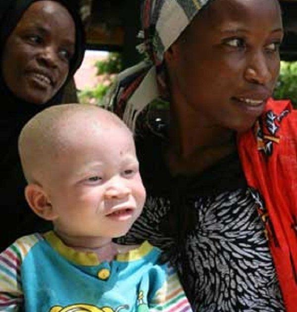 L'albinismo in Africa, tra rituali e omicidi