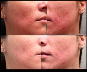 6 weeks using tretinoin for acne side view