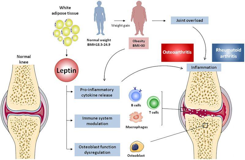 Early Symptoms of Knee Osteoarthritis