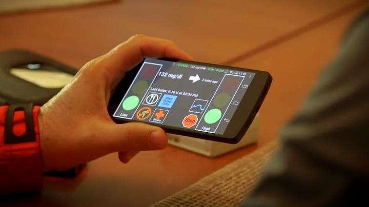 Un esempio di una interfaccia utente del pancreas artificiale. Credit: UVA Salute