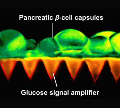 glucose-amplifier
