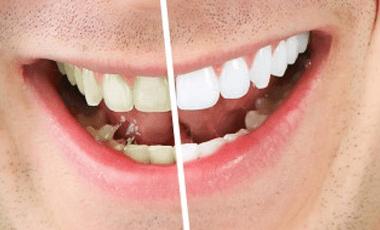 Get Healthier, Whiter Teeth — the Safe Way
