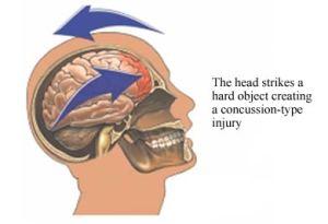 concussion seminar, concussion, parents