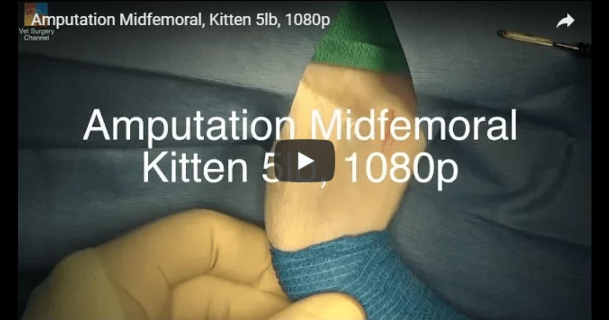 midfemoral amputation