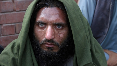 A man wounded in a bomb explosion at an Islamic seminary waits to be transported to a burn ward after receiving initial…