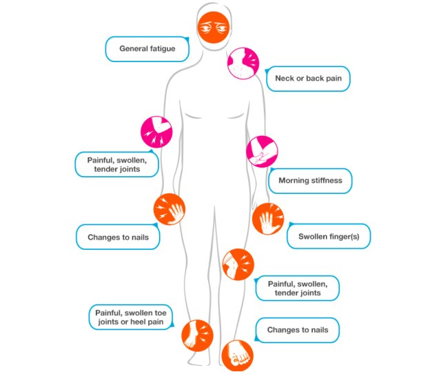 Psoriatic Arthritis A Map Of Symptoms Via Breakthedoublewhammy Ca