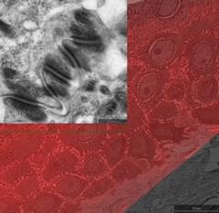 Correlative Microscopy