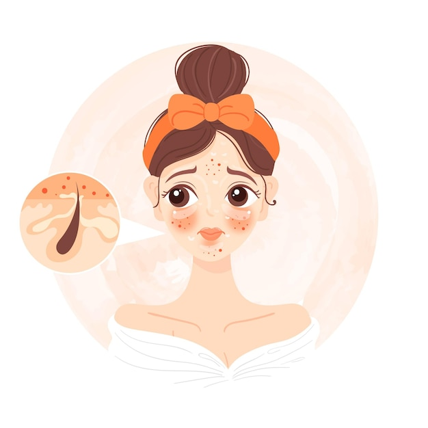 Cartoon oily skin illustration with woman Free Vector