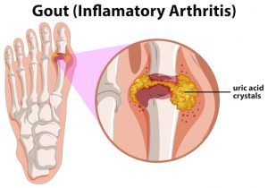 Diagram showing gout in human foot Vector | Free Download
