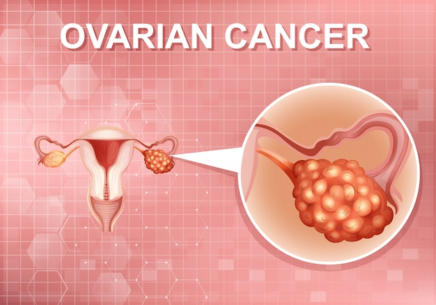 Poster design for human ovarian cancer in human body Free Vector