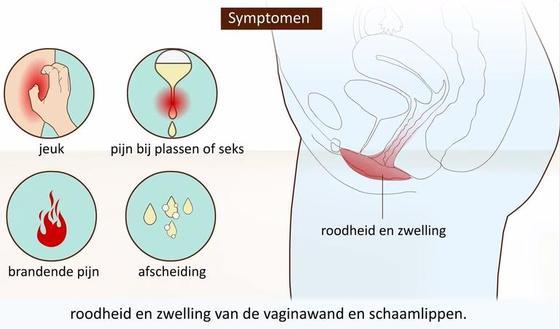 Afbeeldingsresultaat voor vaginale infectie