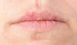 123-koortslip-herpes-07-16.jpg