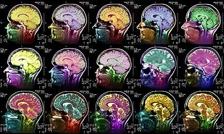 Coloured MRI scans through a human head showing a healthy brain