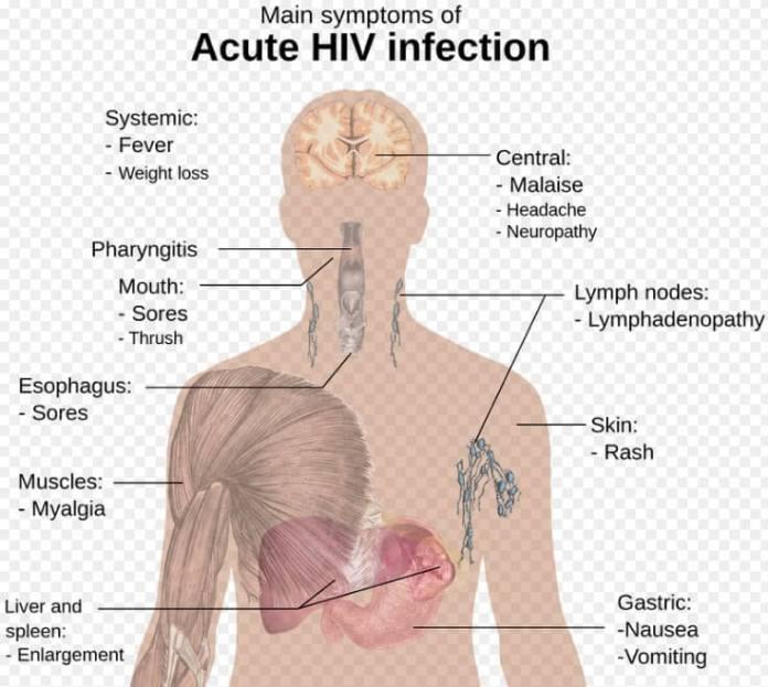 hiv_symptoms hiv aids