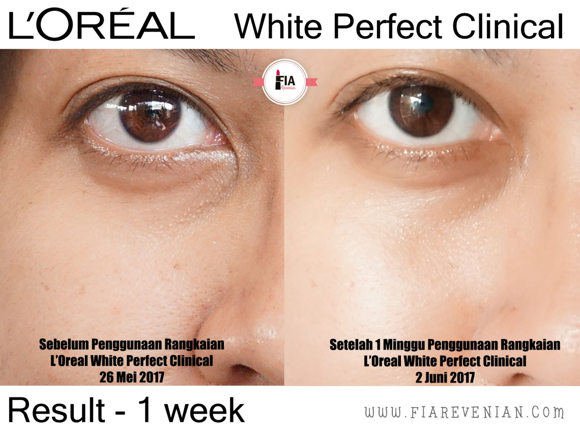 L'Oreal White Perfect Clinical