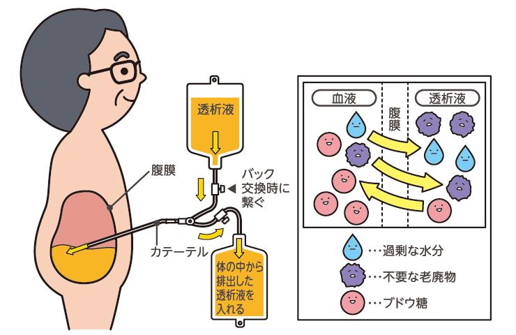 腹膜透析 - 【公式】こうまつ循環器科內科クリニック