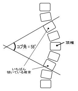 側彎癥に対するアプローチ - 【こまごめ腰痛治療室】腰痛専門の當院へお任せ下さい