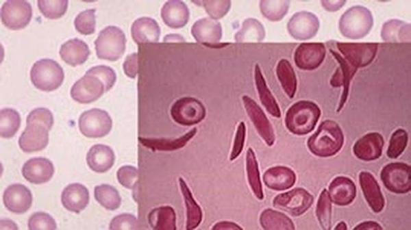 research page american sickle cell anemia association - 710×398