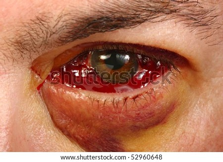 stock-photo-eye-after-retina-detachment-surgery-52960648.jpg