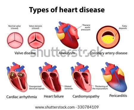 Heart Disease: Valve Disease, Aneurysm, Coronary Artery Disease, Cardiac Arrhythmia, Heart Failture, Cardiomyopathy And Pericarditis Stock Vector ...