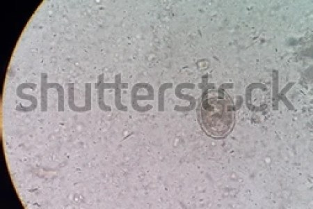 Ascaris Lumbricoides Decorticated Egg Stock Photo  Edit Now     Ascaris lumbricoides decorticated egg