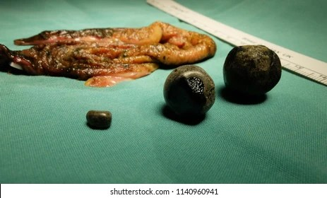 Cholecystectomy Images Stock Photos Amp Vectors