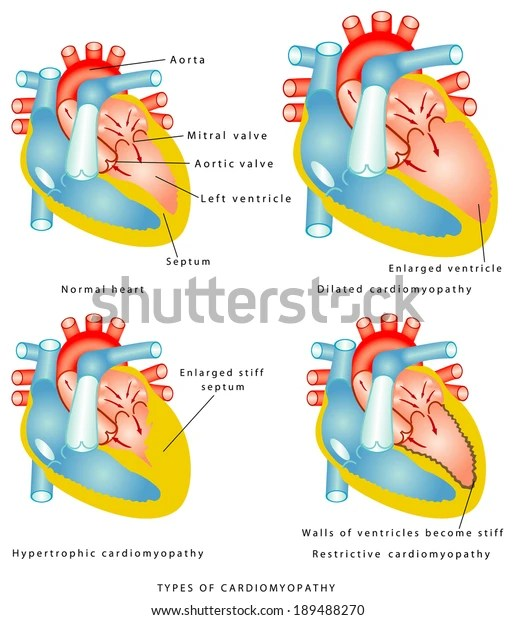 Diseases Heart Muscle Types Cardiomyopathy Walls Stock Vector (Royalty Free) 189488270