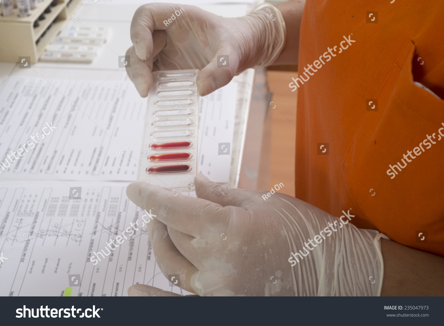Ysis Laboratory Blood Test Real Action Stock Photo