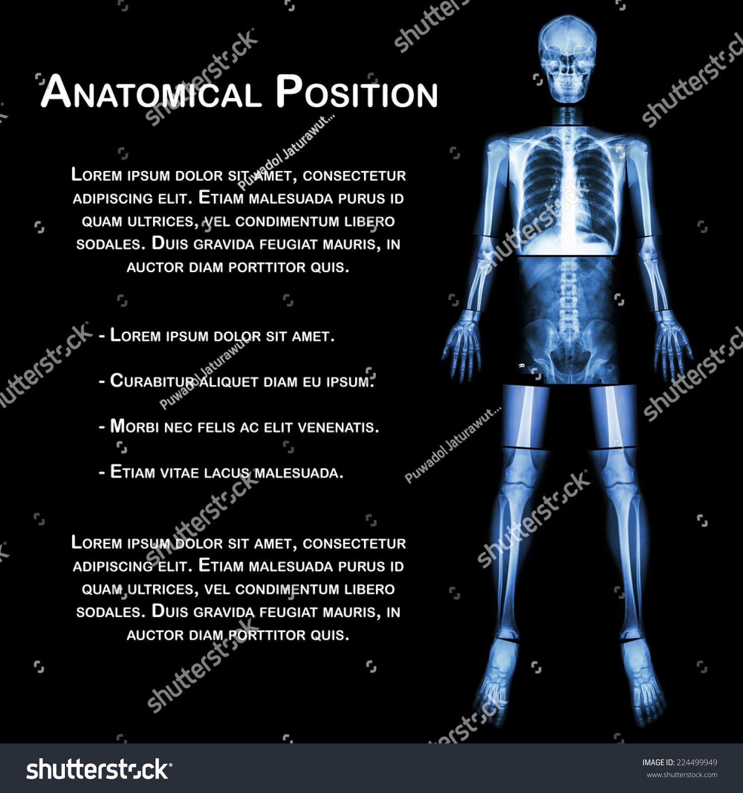Anatomical Position Xray Whole Body Head Stock Photo