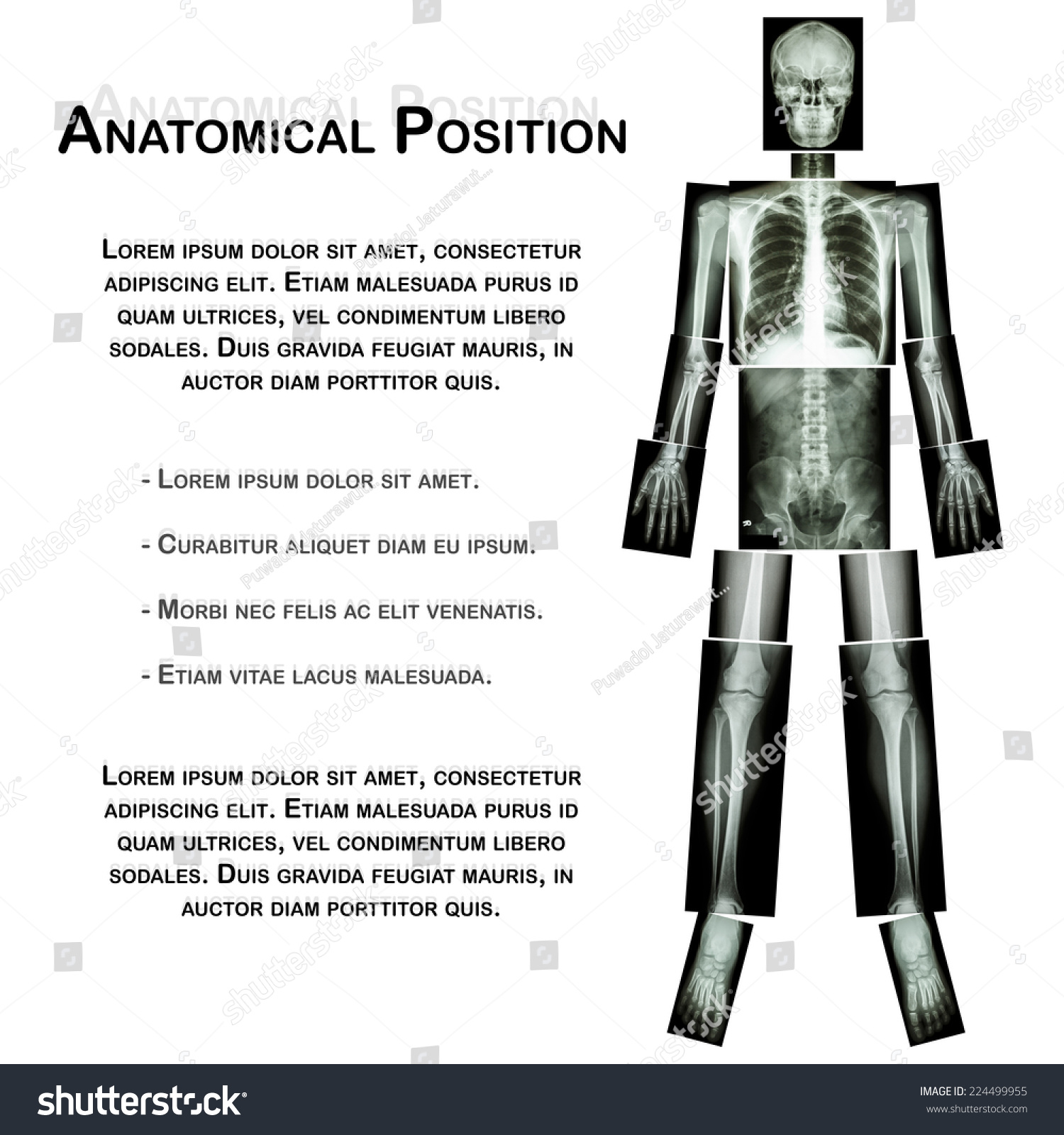Anatomical Position X Ray Whole Body Head Neck
