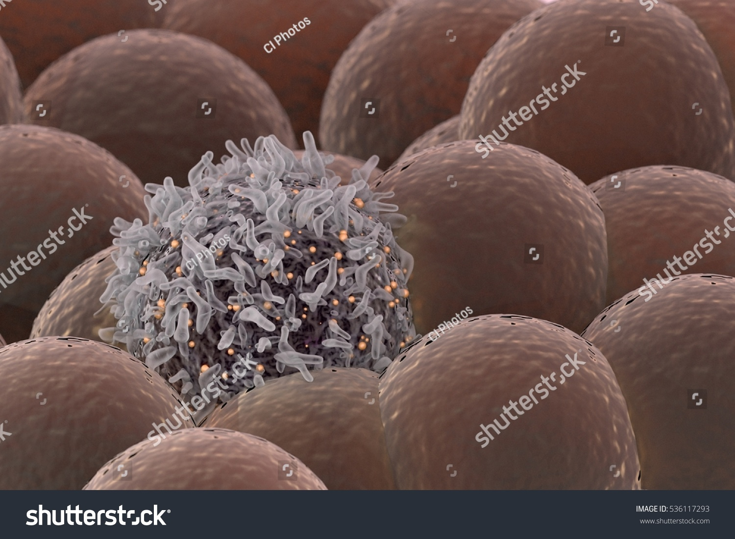 Cancer Cell Among Healthy Cells Stock Illustration