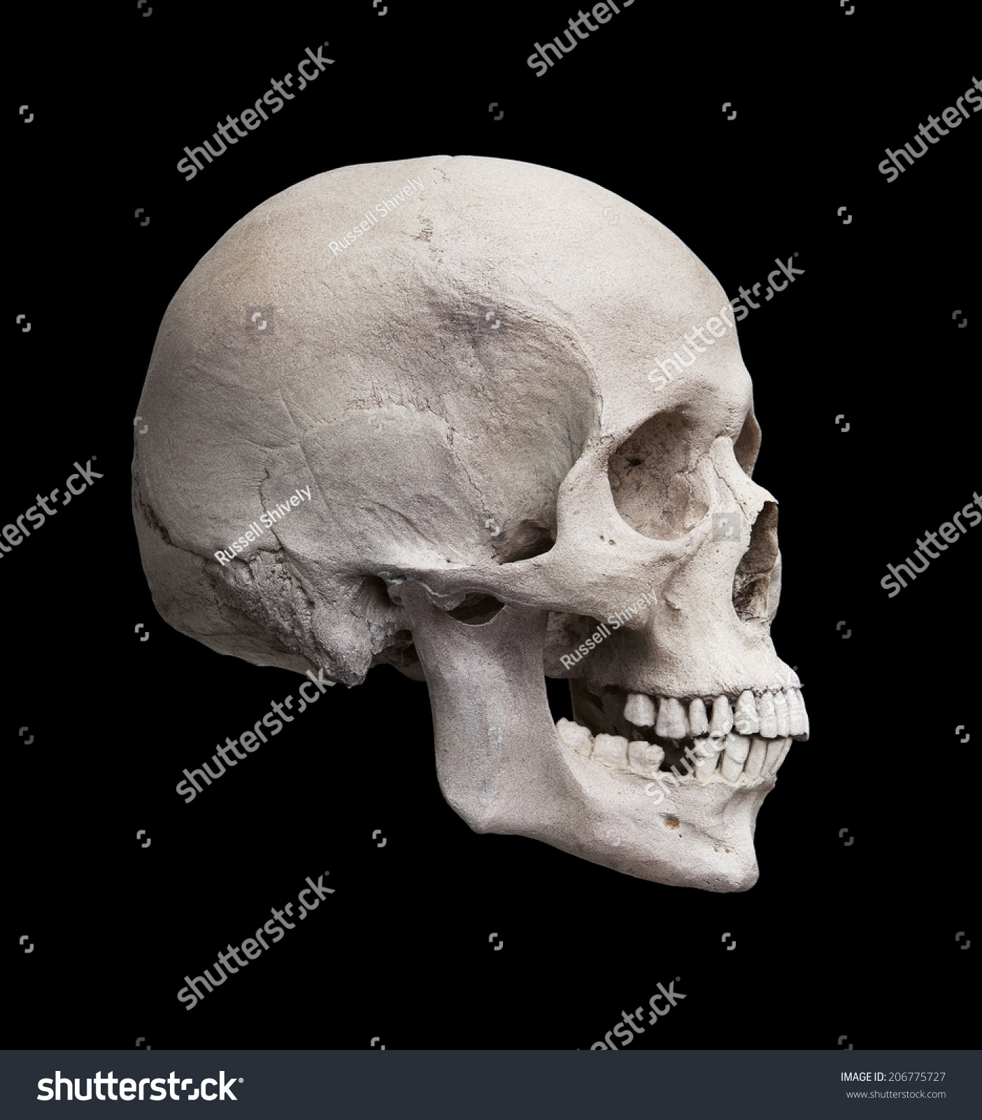 Cast Human Skull Showing Right Lateral Stock Photo