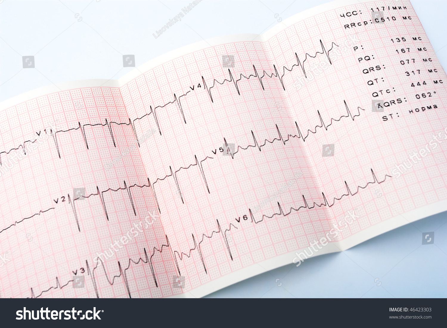 Electrocardiogram Waveform From Ekg Test Showing The Patient S Heart Rhythm Stock Photo