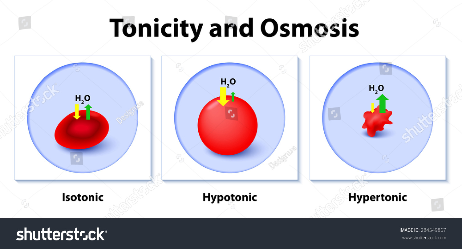 Isotonic Hypotonic And Hypertonic Solutions Effects On