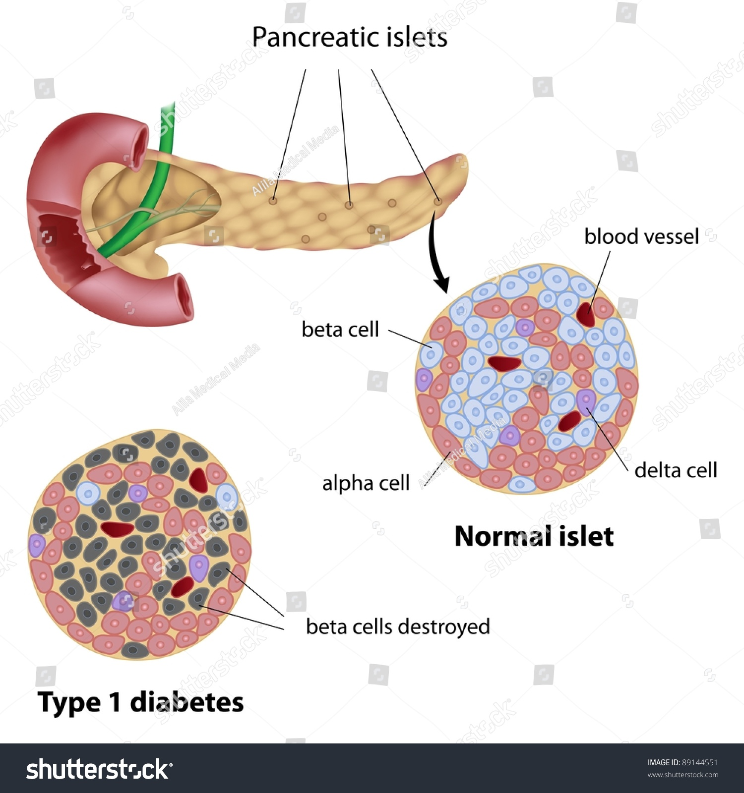 Pancreatic Islet Normal And That Of Type 1 Diabetes Stock